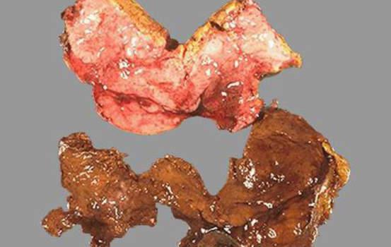 Феохромоцитома. Часть опухоли (внизу) вследствие оксидации катехоламинов приобрела коричневый цвет; макропрепарат.