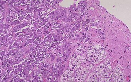 Феохромоцитома. Небольшой остаток ткани коры надпочечника ниже центра справа с более темными клетками феохромоцитомы, видимой наверху слева; микропрепарат.