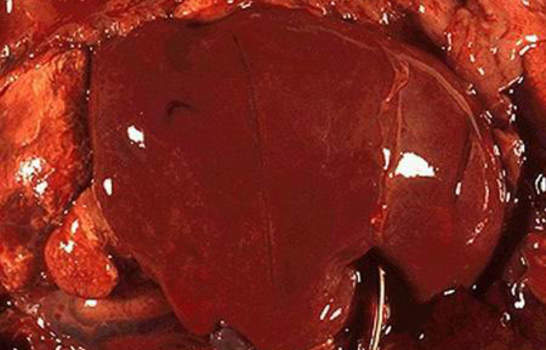 Злокачественные опухоли мозгового вещества надпочечников. Неонатальная нейробластома правого надпочечника, смещающая печень; макропрепарат.