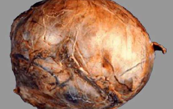Злокачественные опухоли мозгового вещества надпочечников. А. Внешний вид ганглионевробластомы надпочечника: поверхность опухоли сглажена, ткани нормального надпочечника не определяется; макропрепарат.