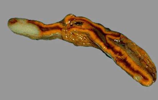 Метастатическое поражение надпочечников. Метастаз аденокарциномы в надпочечник (поперечный разрез): светлые зоны, контрастирующие с неизмененными тканями коркового и мозгового вещества; макропрепарат.