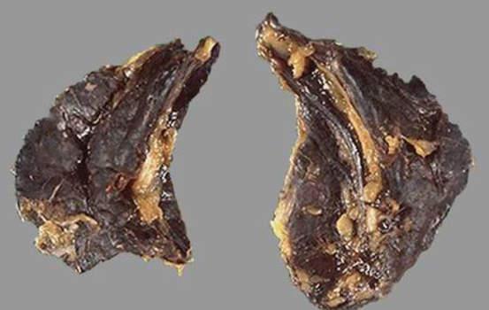Кровоизлияние в надпочечники. Надпочечники черно-красного цвета от обширных геморрагий у больного с менингококцемией; макропрепарат.