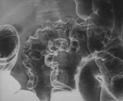 Рентгеноскопия: пневматизация ободочной кишки.