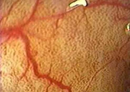 Колоноскопия: пигментация слизистой оболочки толстой кишки – меланоз.