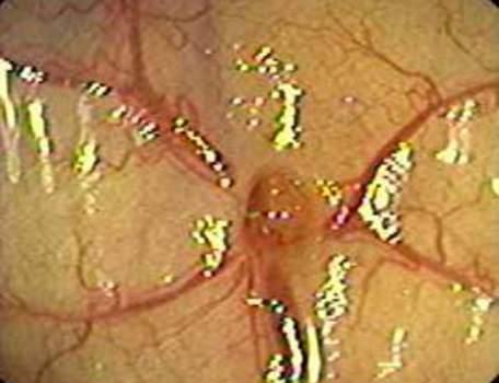 Колоноскопия: артериальные сосуды у входа в дивертикул.