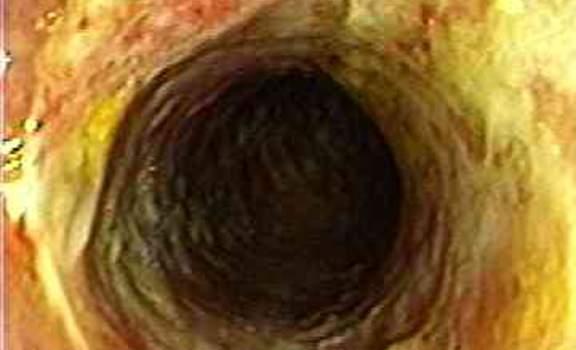 Колоноскопия: отсутствие складок ободочной кишки при развитии ишемического колита.