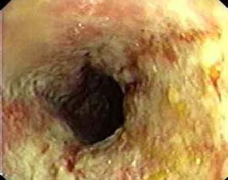 Колоноскопия: сужение просвета кишки при ишемическом колите.