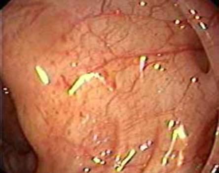 Колоноскопия: признаки воспаления слизистой оболочки вокруг дивертикула сигмовидной кишки.