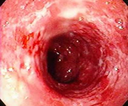 Колоноскопия: диффузное воспаление слизистой оболочки толстой кишки с множественными изъязвлениями.