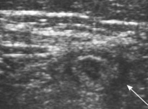 Ультрасонограмма: выявление скопления жидкости вокруг червеобразного отростка (указана стрелкой) может говорить о его перфорации.