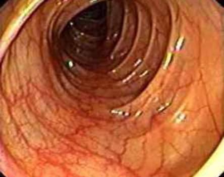 Колоноскопия: слизистая оболочка сигмовидной кишки.