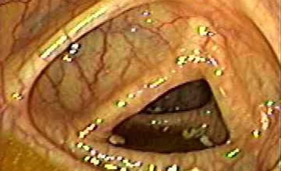 Колоноскопия: просвет нисходящей кишки в норме имеет вид треугольника.