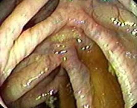 Колоноскопия: складки восходящей ободочной кишки.