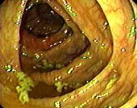 Колоноскопия: просвет восходящей ободочной кишки имеет вид треугольника с острыми углами.