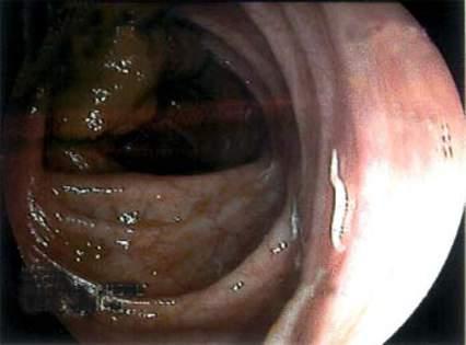 Колоноскопия: мелкие цилиндрические белесоватые паразиты с видимой подвижностью – трихоцефалез