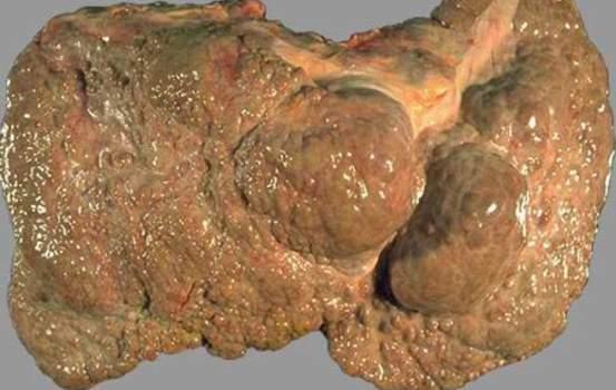 Характерные изменения при циррозе печени. Цирроз (регенерация), атрофия, гипоплазия; макропрепарат.