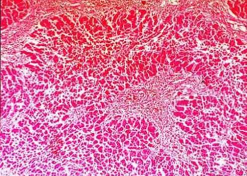 Характерные изменения при циррозе печени. Цирротический узел; микропрепарат.
