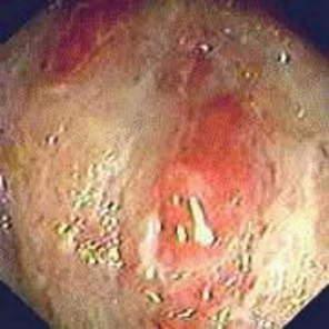 Ректоскопия: гиперемия слизистой оболочки и наложение фибрина при остром проктите