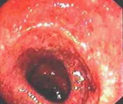 Ректоскопия: выраженные изменения слизистой оболочки прямой кишки при язвенном проктите