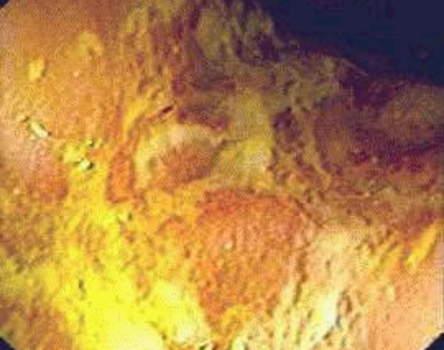 Ректоскопия: фибринозно-гнойные наложения на слизистой оболочке прямой кишки при болезни Крона