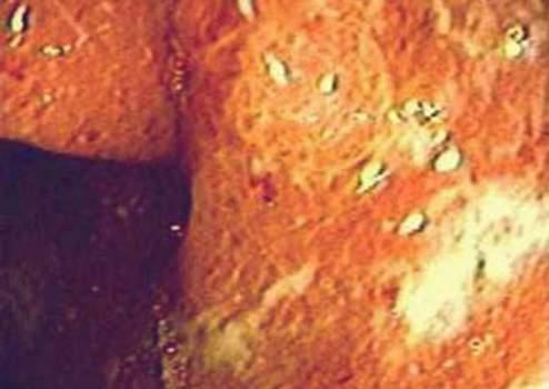 Ректоскопия: налет фибрина на слизистой оболочке прямой кишки