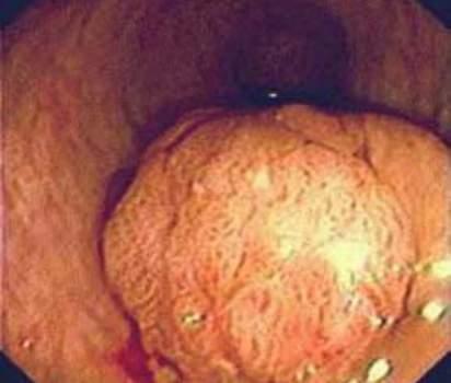Ректоскопия: ворсинчатая опухоль прямой кишки. фото 1.