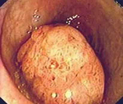 Ректоскопия: ворсинчатая опухоль прямой кишки. фото 2.