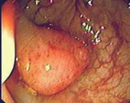 Ректоскопия: железистый полип на ножке