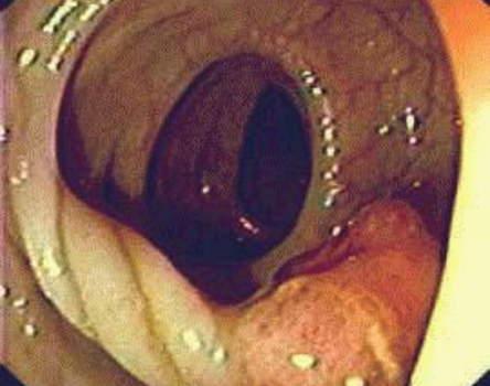 Ректоскопия: железистый полип прямой кишки на длинной ножке