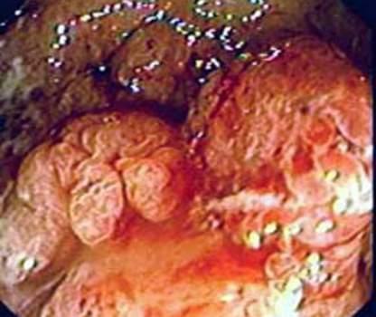 Ректоскопия: рак прямой кишки