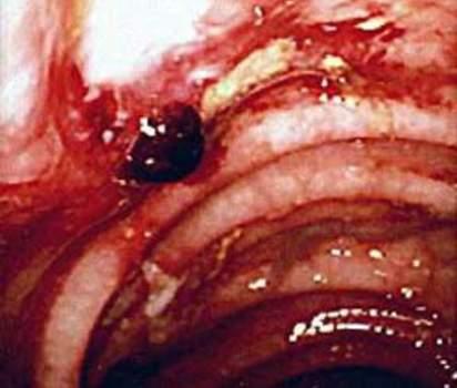 Ректоскопия: солитарная язва прямой кишки с признаками состоявшегося кровотечения