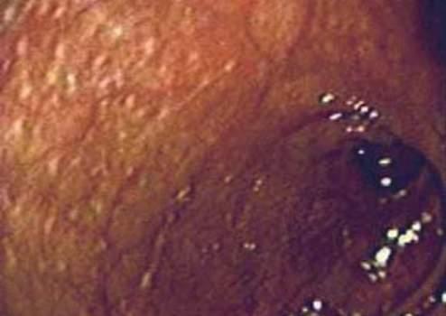 Ректоскопия: слизистая оболочка прямой кишки с признаками меланоза