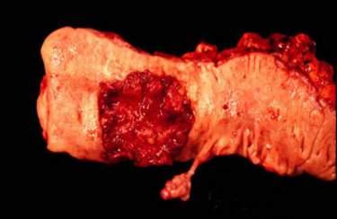 Аденокарцинома, развившаяся из виллезной опухоли прямой кишки (макропрепарат)