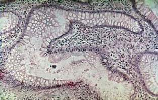 Воспалительный полип слизистой прямой кишки: железы без признаков дисплазии (микропрепарат)