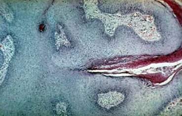 Венерическая бородавка (кондилома остроконечная): эпителиальные клетки хорошо дифференцированы, определяется четкая граница между эпидермисом и дермой, в которой отмечаются небольшие инфильтраты из плазматических клеток и лимфоцитов