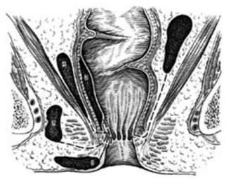 Схема расположения зон воспалительных изменений при парапроктите