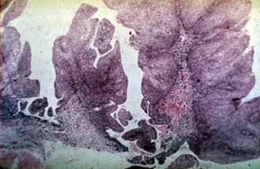 Анальная папиллома (микропрепарат)