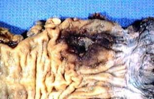 Эндофитно-язвенная форма рака ампуллярного отдела прямой кишки (макропрепарат)