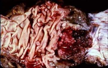 Большая фунгозная карцинома прямой кишки с сопутствующими полипами (макропрепарат)