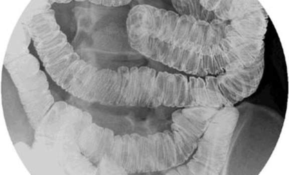 Рентгеноскопия: тонкая кишка, заполненная бариевой взвесью.