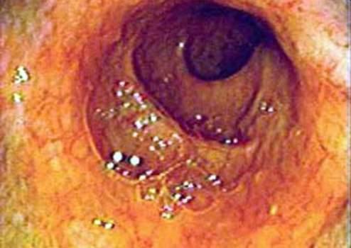 Эндоскопия: вид нормальной слизистой оболочки терминального отдела подвздошной кишки.