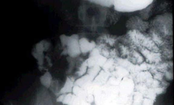 Рентгеноскопия: тощая кишка, заполненная водорастворимым контрастным веществом.