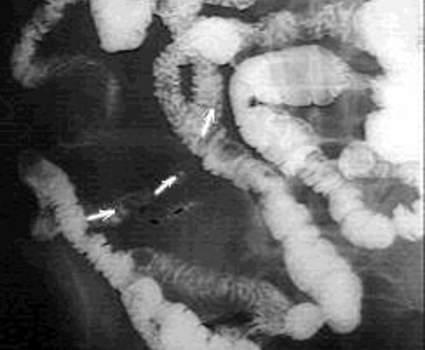 Рентгеноскопия: заполнение контрастным веществом слепозаканчивающегося образования (Меккелев дивертикул).