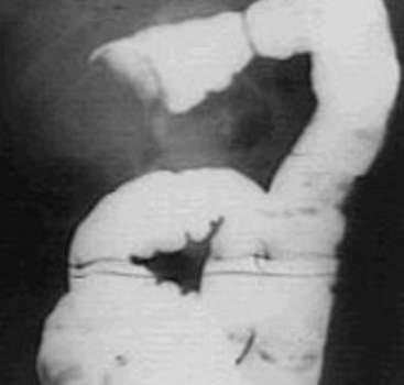 Рентгенография: прекращение движения введенного трансректально контрастного вещества при достижении им головки инвагината.