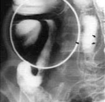 Рентгеноскопия: афты слизистой оболочки тонкой кишки.