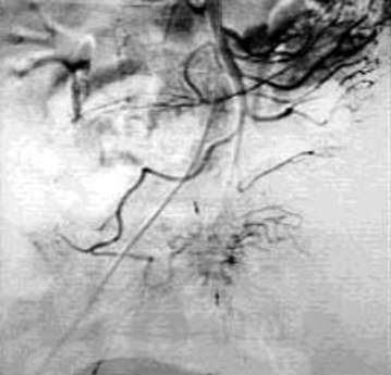 Артериография: деформация мелких артериальных сосудов в зоне локализации карциноида тонкой кишки.