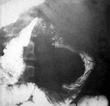 Рентгеноскопия: большой дефект наполнения округлой формы – лейомиосаркома проксимального отдела тощей кишки.