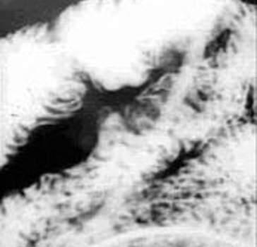 Рентгеноскопия тощей кишки при лимфогранулематозе.