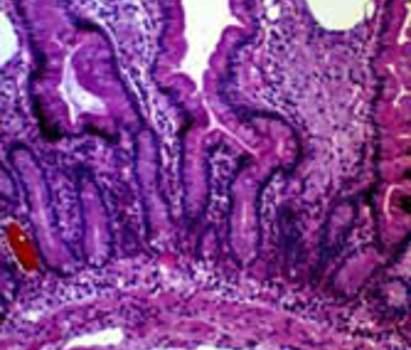 Болезнь Уипла: ворсины тонкой кишки пронизаны гистиоцитарным инфильтратом, который является причиной дилатации лимфатических сосудов в верхней части ворсинки (микропрепарат).