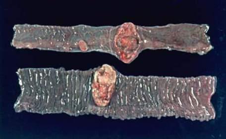 Неходжкинская лимфома тонкой кишки (макропрепарат).